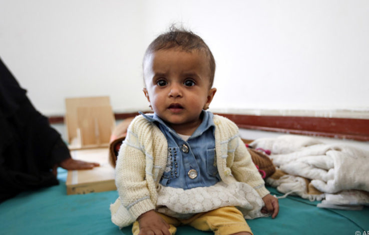 Jedes vierte Kind leidet unter Krisen