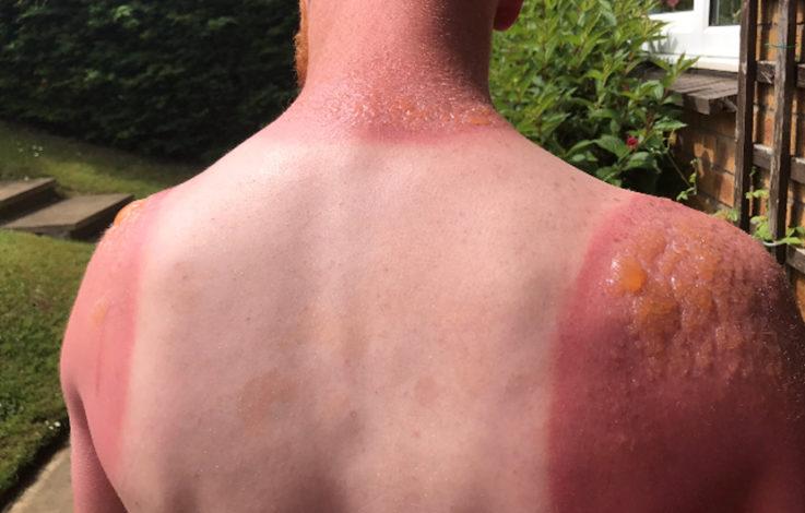 Dieser Mann zeigt, warum man nie auf Sonnencreme verzichten darf