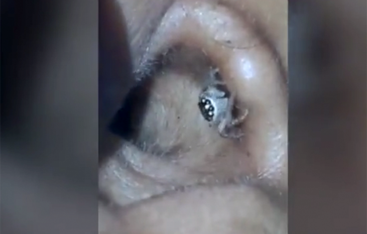 Frau klagt über Kopfweh, Arzt findet Spinne im Ohr