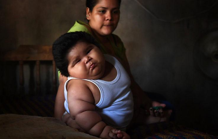 Unfassbar: Baby bringt 28 Kilo auf die Waage